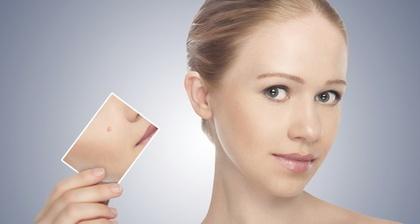 scar-free-skin
