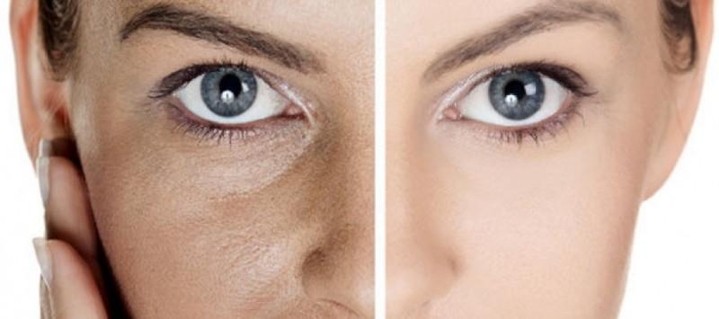 pores-women
