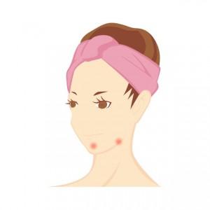 acne-9